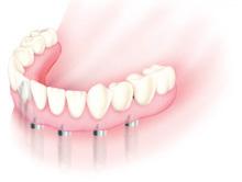 数本のインプラントで義歯をしっかり固定